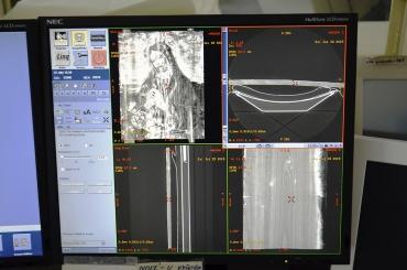 Obr. 7: CT přístroj a prostředí programu pro vyhodnocení snímku