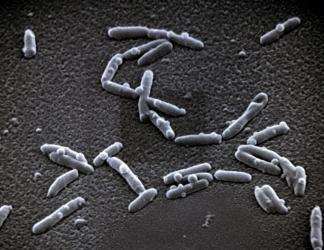 Legionella pneumophila je parazit, který vniká do lidských buněk a způsobuje tzv. legionářskou nemoc